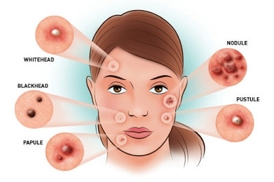 process of Acne