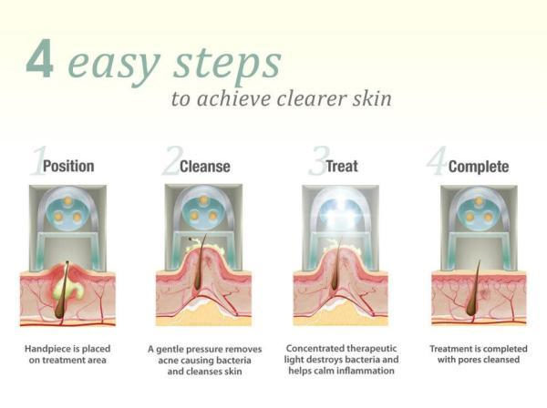 steps to fix Acne
